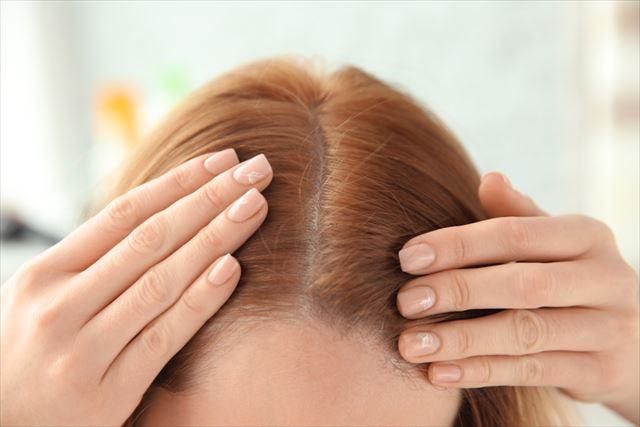 女性の頭皮の画像
