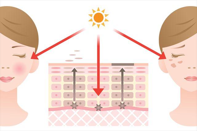 メラニンの影響を説明した画像